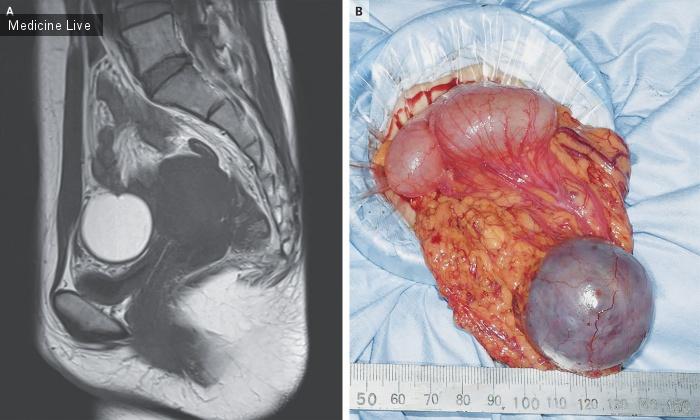 Интересный случай: Эндометриоз сальника