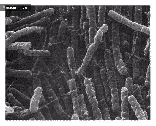Интересный случай: Clostridium difficile