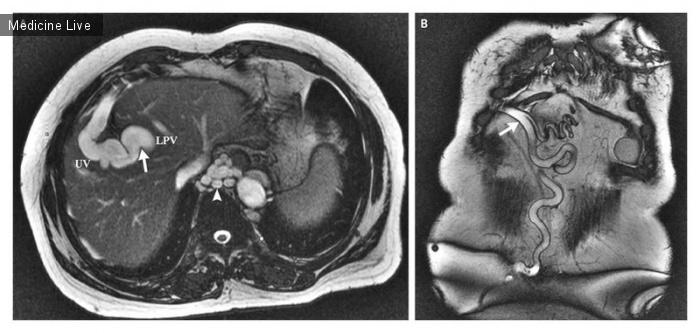 Интересный случай: Реканализация пупочной вены