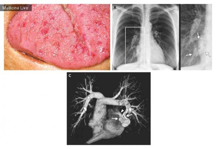 Интересный случай: Легочная артериовенозная фистула