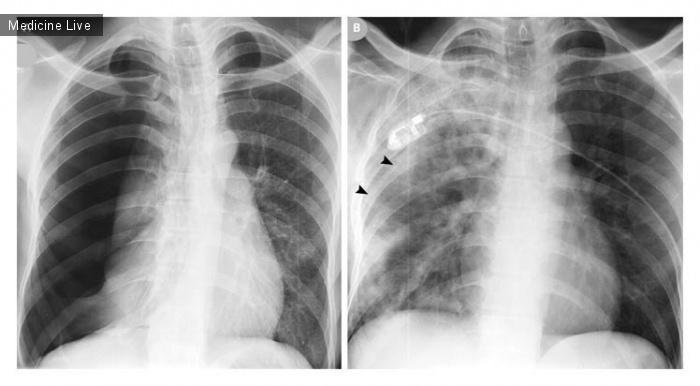 Интересный случай: Рецедивирующий отек легкого после лечения пневмоторакса