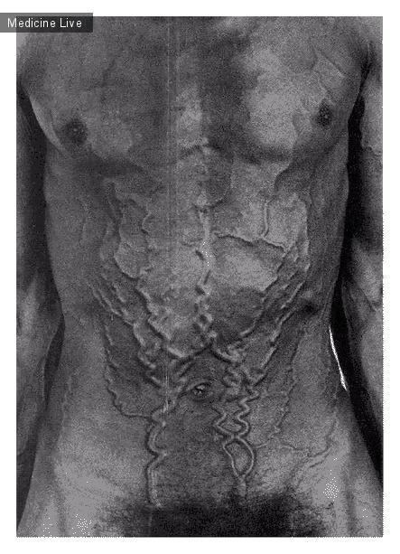 Интересный случай: Синдром верхней полой вены