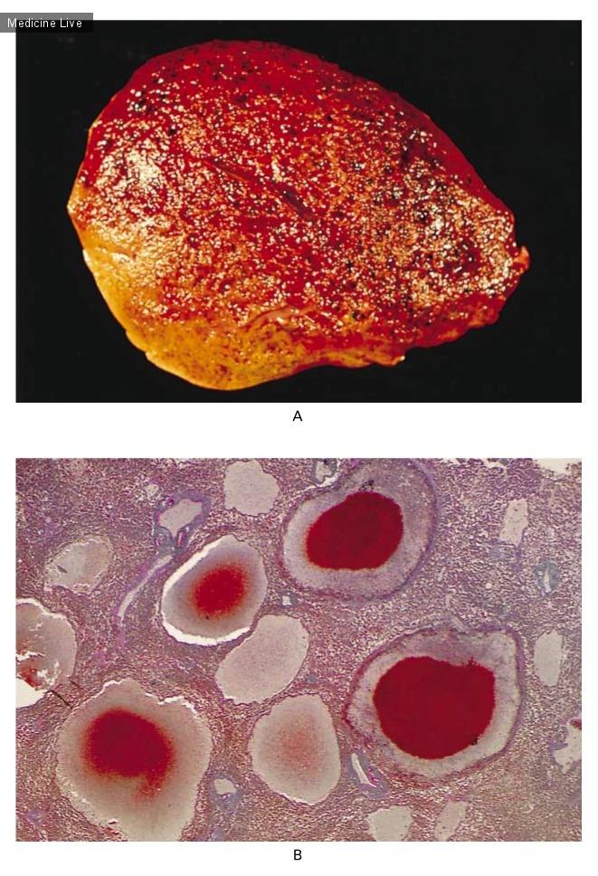 Интересный случай: Пелиозный гепатит
