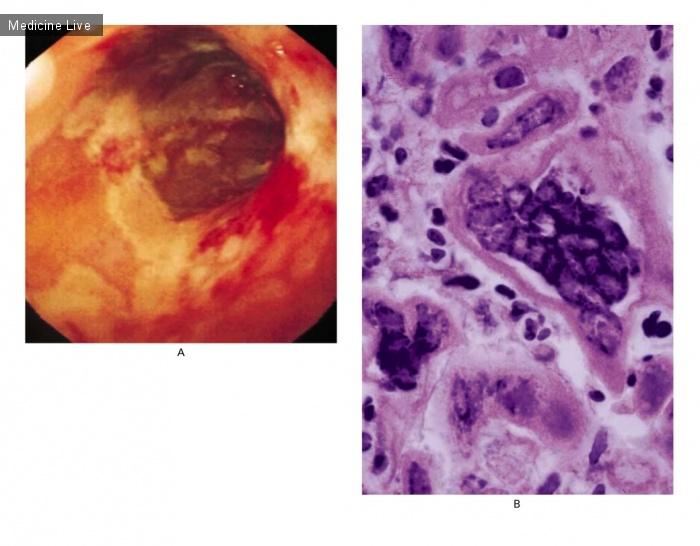 Интересный случай: Эзофагит, вызванный вирусом простого герпеса