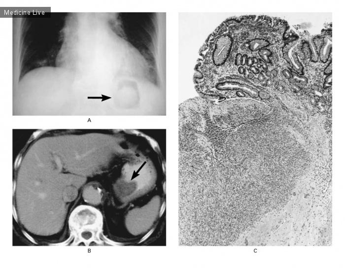Интересный случай: Опухоль желудка, выявленная при рентгенографии органов грудной полости