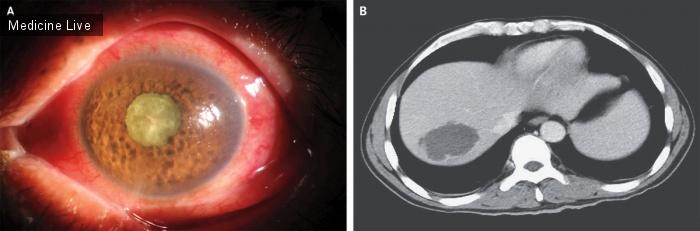 Интересный случай: Гипервирулентная Klebsiella pneumoniae