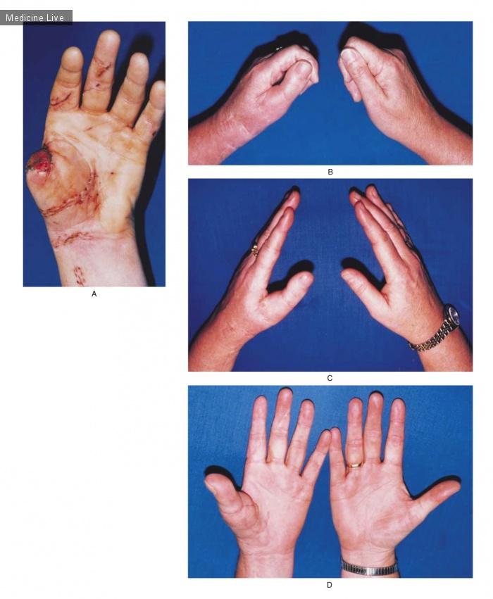 Интересный случай: Трансплантация пальца ноги на кисть руки