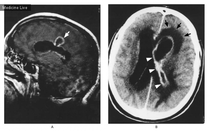 Интересный случай: Внутрижелудочковый разрыв церебрального абсцесса