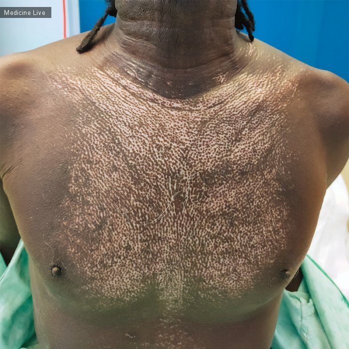 Интересный случай: Изменения кожи наподобие «Соли с перцем» при системном склерозе