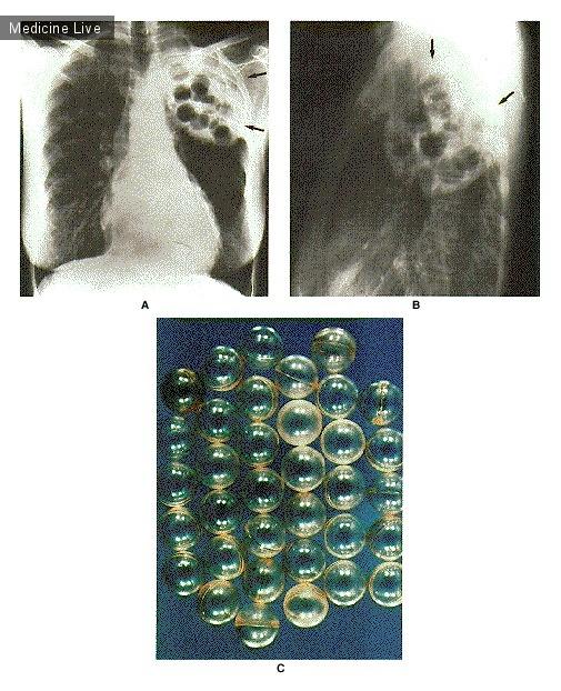 Интересный случай: Плюмбаж с помощью шариков из люцита