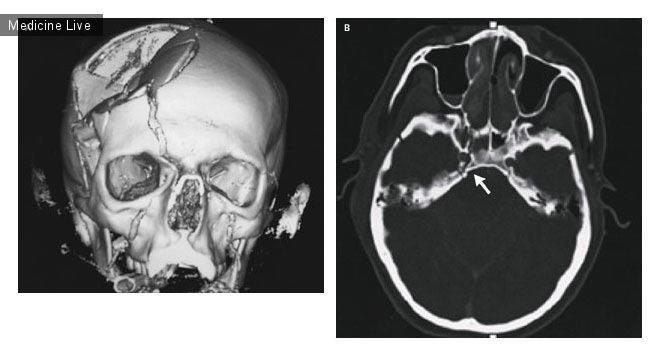 Интересный случай: Тромбоз сонной артерии из-за перелома основания черепа