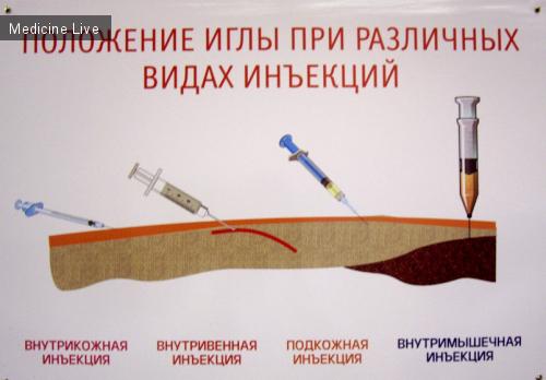 Как правильно сделать внутривенную инъекцию